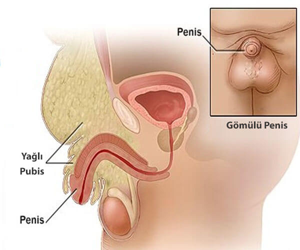 gömülü penis